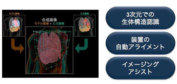 最新MRI説明